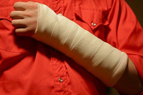 «Простой» перелом— нужна ли реабилитация?